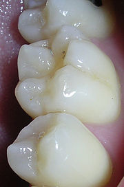 The pits and fissures of teeth provide a location for caries formation.