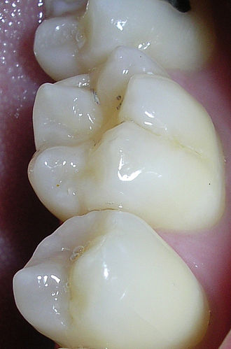 Dental sealant - Back teeth showing fissure system