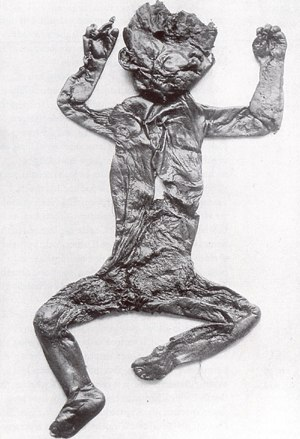 Bog body - Discoveries such as Röst Girl no longer exist, having been destroyed during the Second World War.
