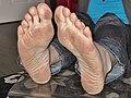 Soles Of Human Feet.jpg