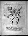 A diagram of a Siamese twin with conjoined spine Wellcome L0033307.jpg