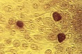 Chlamydia trachomatis.tif