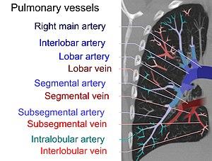 CT pulmonary angiogram - Pulmonary emboli can be classified according to level along the pulmonary arterial tree.