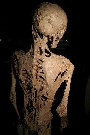 Fibrodysplasia ossificans progressiva - Wikipedia
