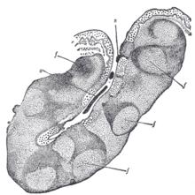 Tonsillolith - Wikipedia