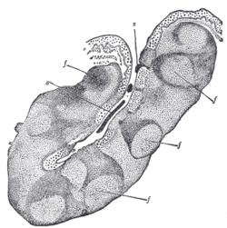 Tonsillar crypts - Wikipedia