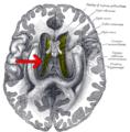 Gray748-emphasizing-corpus-callosum.png
