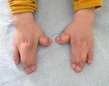 Baby Feet Nail Designs