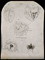 Heart; three figures, and the genital area of supposed herma Wellcome V0007945ER.jpg