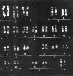Genetic analysis - Karyotype of chromosomes