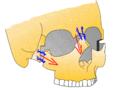 LeFort3 Osteotomie.png