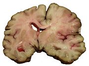 A slice of brain from the autopsy of a person who suffered an acute middle cerebral artery (MCA) stroke