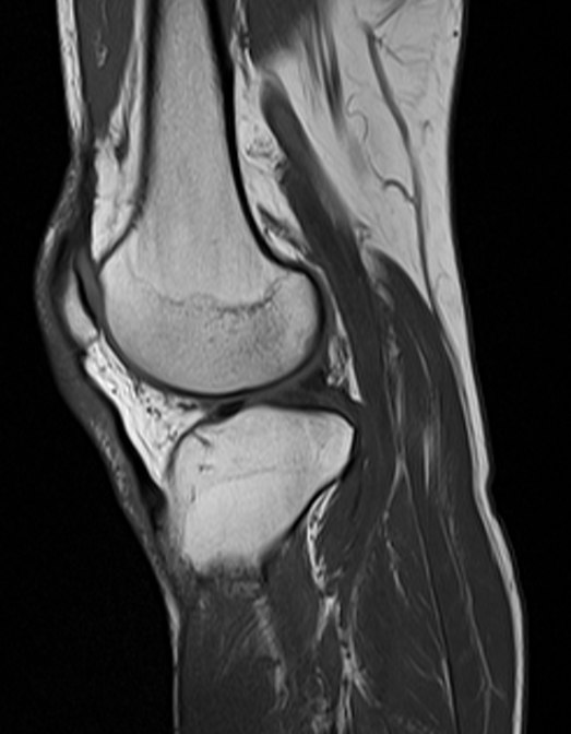 MRI knee abdonrmal