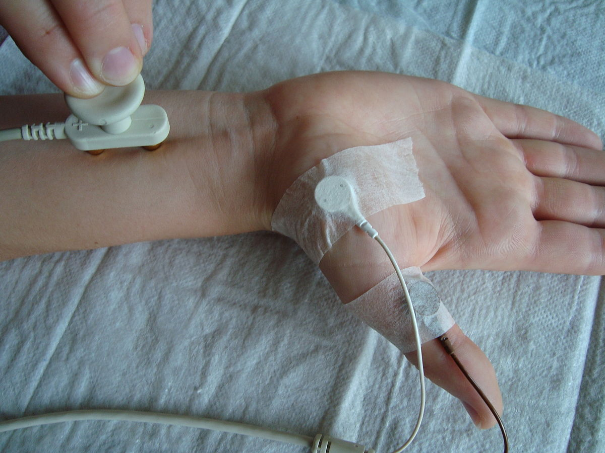 Nerve conduction study - Wikipedia