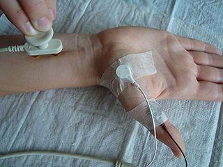 diagnostic test for nerve function