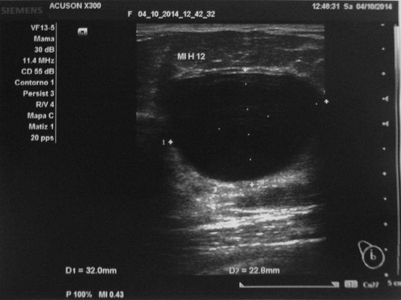 File:Nodulo mamografico BR 0-Ecografía.JPG