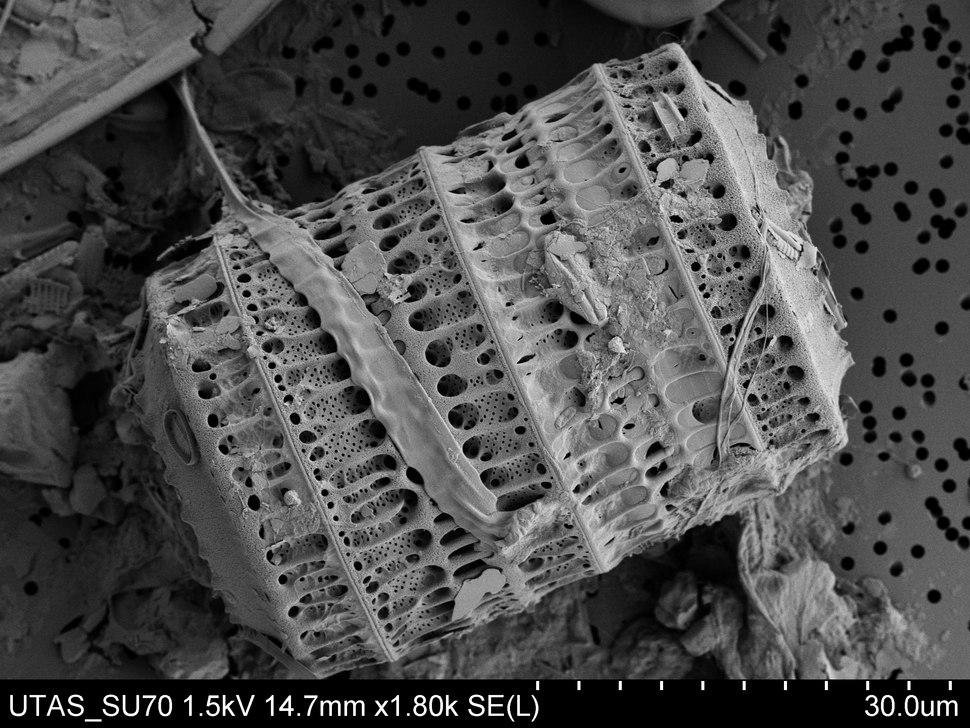 Paralia sulcata diatom