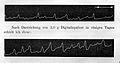 Pulse traces Wellcome L0006527.jpg