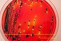 XLD Agar-mixed culture of Salmonella sp and Escherichia coli (6500349623).jpg