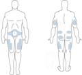 Επιλογή σημείων στο σώμα1-φλεβοκέντηση.png