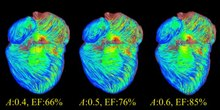 File:A-Kinematic-Approach-for-Efficient-and-Robust-Simulation-of-the-Cardiac-Beating-Motion-pone.0036706.s003.ogv