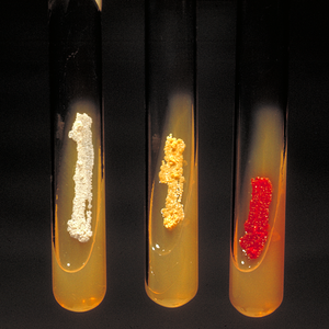 Nocardia - Nocardia asteroides (yellow colonies).