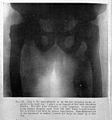 C. B. Keetley, Orthopaedic surgery Wellcome L0029867.jpg