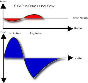 CPAP flow