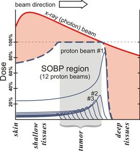 Proton Therapy Wikipedia