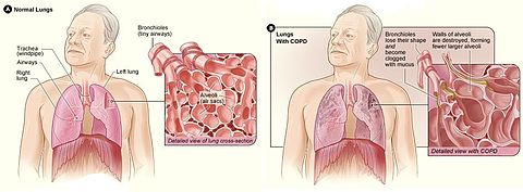 Chronic obstructive pulmonary disease wikipedia on the left is a diagram of the lungs and airways with an inset showing a detailed cross section of normal bronchioles and alveoli ccuart Images
