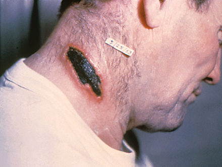 Skin anthrax lesion on the neck Cutaneous anthrax lesion on the neck. PHIL 1934 lores.jpg