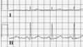 De-Electric noise ecg (CardioNetworks ECGpedia).png