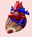De-Heart with P infarct (CardioNetworks ECGpedia).png