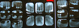 English: Examples of dental radiography