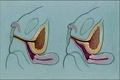 Feminizing genital reconstruction in congenital adrenal hyperplasia 2009 F0001.png
