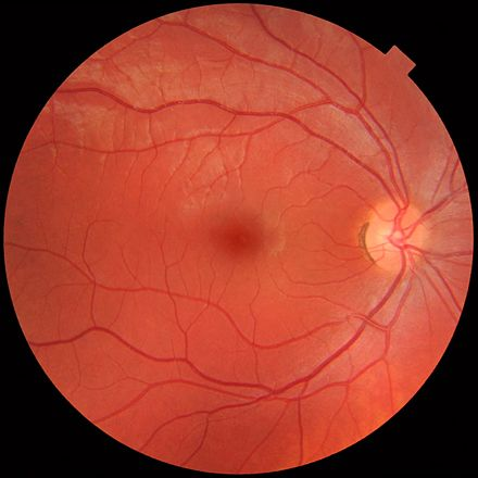 Fundus photograph showing the blood vessels in a normal human retina. Veins are darker and slightly wider than corresponding arteries. The optic disc is at right, and the macula lutea is near the centre. Fundus photograph of normal right eye.jpg