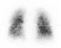 Gamma Camera Lungs.png