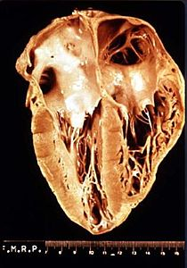 Photograph of a heart showing perforation of the walls