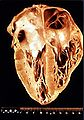Heart pathology Chagas disease.JPG