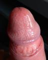 Human penis pre-ejaculate.png