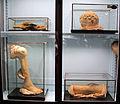 Istituto di anatomia patologica, museo, cere, vetrina 13.JPG