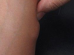 fettknöl på benet