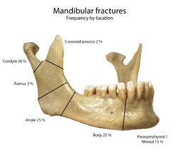 Left Mandibular Ramus Bad Fracture Cat Uk
