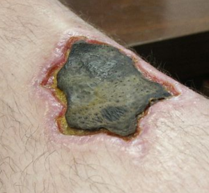 Necrosis - Necrotic leg wound caused by a brown recluse spider bite