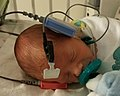NeonatalHearingScreening.jpg