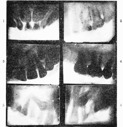PSM V56 D0681 Dental x ray of a ten year old patient.png