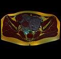 Pelvic MRI 05 14.jpg