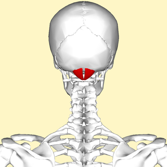 Rectus capitis posterior minor muscle - Human skull seen from back (rectus capitis posterior minor shown in red.)