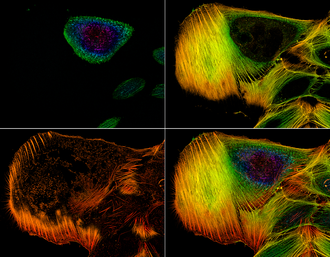 Confocal microscopy - Example of a stack of confocal microscope images showing the distribution of actin filaments throughout a cell.