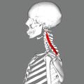 Splenius cervicis muscle lateral.png